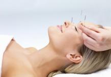 akupunktura-kosmetyczna