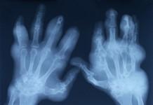 reumatyzm-przyczyny