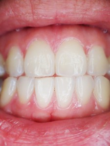 utrata zębów