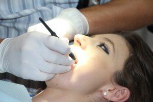 Jak wybielić zęby?