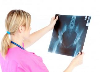 osteopenia-i-osteoporoza-choroby-czasu-przekwitania