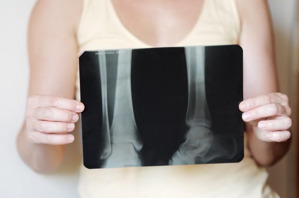 jakie-sa-objawy-osteopenii