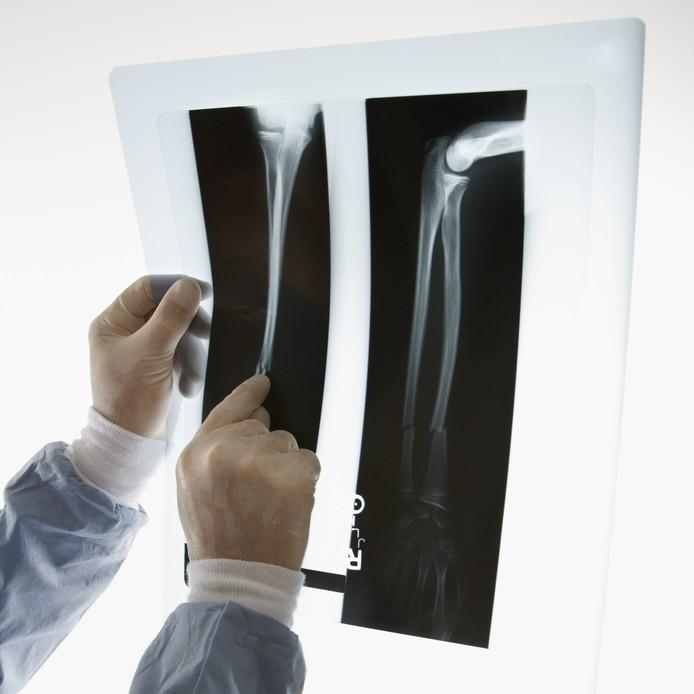 osteoporoza-w-okresie-menopauzy