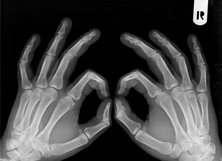 osteopenia-przyczyny
