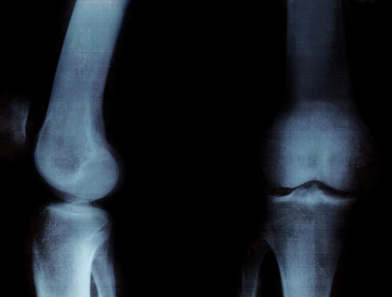 osteopenia-poczatek-osteoporozy