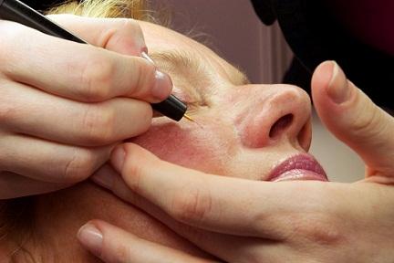 cera-naczynkowa-rozpoznanie-pielegnacja-leczenie