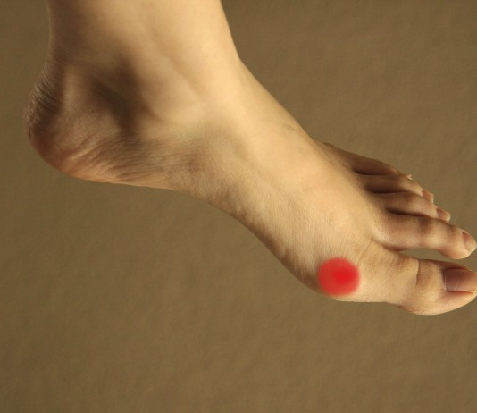 czym-jest-stopa-cukrzycowa