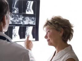 przyczyny-osteopenii