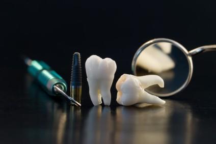 higiena-jamy-ustnej